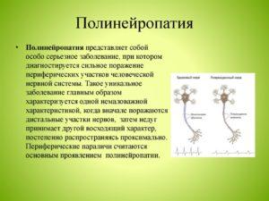 Алкогольная полинейропатия: лечение, симптомы, препараты, невропатия