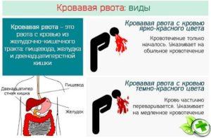 Как остановить рвоту при отравлении алкоголем, предотвратить тошноту взрослого