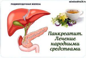 Медикаментозное лечение хронического панкреатита в стадии обострения в домашних условиях народными средствами