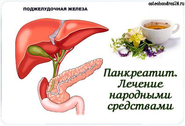Как лечить обострение панкреатита в домашних условиях
