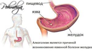 Болезни от алкоголя, какие заболевания вызывает потаторство, список болезней, вызванные алкоголизмом