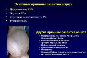 Асцит цирротической природы: признаки, клиника, лечение, прогноз