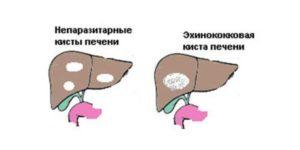 Лечение печени народными средствами в домашних условиях, заболевания печени: гепатоз, гемангиома, киста, поликистоз, дистрофия печени, гепатомегалия