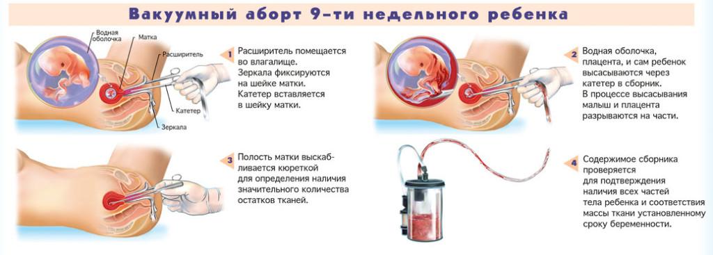 Медикаментозное прерывание беременности ростов