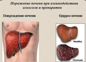 Восстановления печени после алкоголя препаратами