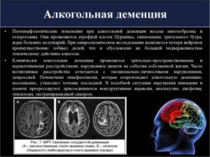 Алкогольная деменция / Каталог заболеваний