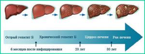 Можно ли вылечить цирроз печени: возможно ли, у женщин при гепатите