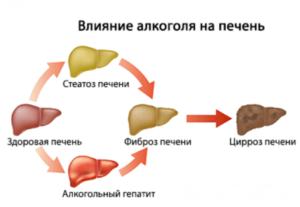 Лекарства для восстановления и поддержания здоровья печени после приема алкоголя, список