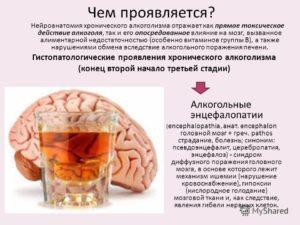 Алкогольная энцефалопатия что это такое и как лечить