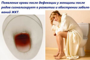 Кровь при дефекации с кровью после алкоголя: у мужчин, причины, у женщин, симптомы, как лечить