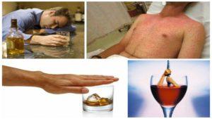 Алкогольная интоксикация и как от нее избавиться