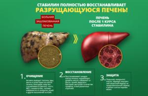 Восстанавливается ли печень: через сколько времени, клетки печени, как быстро помочь в домашних условиях