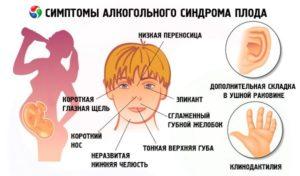 Алкогольная фетопатия, синдром алкогольной фетопатии у детей