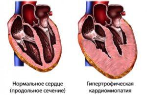Ишемическая кардиомиопатия сердца: осложнения, лечение, причина смерти