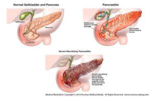 Лечение острого панкреатита в стационаре, диагностика и хирургическое лечение реактивного панкреатита поджелудочной железы