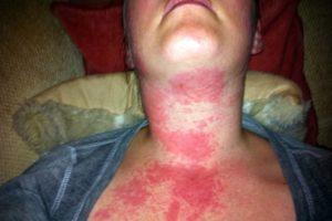 Аллергия на алкоголь, как проявляется и что в такой ситуации делать