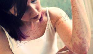 4 симптома указывающих на аллергию на вино