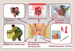 Причины появления крови из заднего прохода при запоре