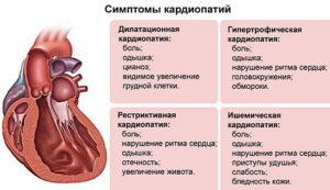 Алкогольная кардиомиопатия: лечение, симптомы и причины
