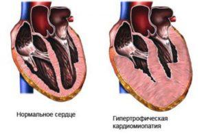 Алкогольная кардиомиопатия: неуточненная, токсическая, ишемическая кардиопатия, симптомы и лечение