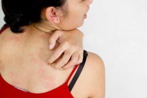 Аллергия на шампанское симптомы