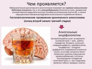 Алкогольная энцевалопатия: лечение, дисметаболическая, острая токсическая при алкоголизме, симптомы