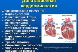 Токсическая кардиомиопатия - что это такое, симптомы и лечение