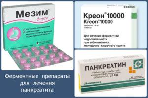 Какие таблетки лучше для лечения панкреатита: хронического и острого