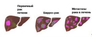 Рак печени одно и тоже что и цирроз печени: разница