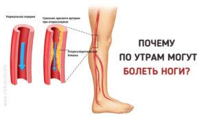 Почему болят ноги после алкоголя, причины