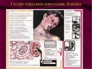 Алкогольная кома: симптомы, стадии, лечение и последствия
