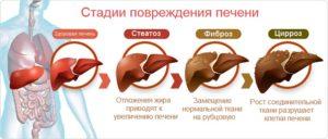 Урсофальк и алкоголь: лечение болезней печени