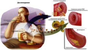 Как влияет алкоголь на уровень холестерина. Можно ли употреблять алкоголь при повышенном холестерине. - Холестерин