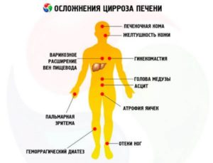 Цирроз печени: симптомы у мужчин, первые признаки и особенности течения
