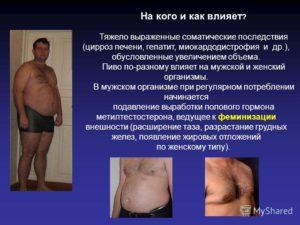 Цирроз печени: причины, симптомы, стадии цирроза печени