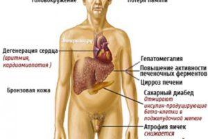 Признаки цирроза печени у мужчин и женщин, в чем отличия