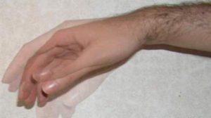 Почему постоянно трясутся и дрожат руки, причины тремора в руках у человека, лечение дрожи пальцев