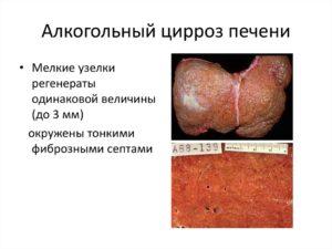 Алкогольный цирроз печени: признаки, симптомы, лечение у мужчин при алкоголизме
