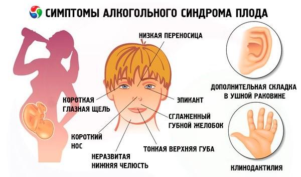 Алкогольная фетопатия - Медицина